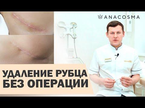 ⚠️Лазерная шлифовка шрамов ⚠️Лазерное удаление рубцов 🔥 ОПАСНО?🔥