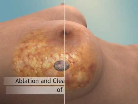 Puffiness cu artroza cum se tratează