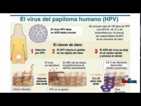Papillomavirus tongue