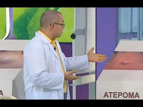 Липома, атерома, гигрома и рак