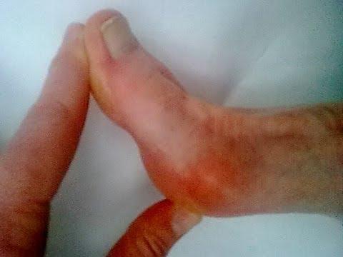 การกำจัดของกระดูกของนิ้วเท้าใหญ่