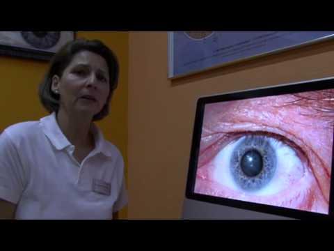 La trombosi e linfiammazione di gemorroidalny annodano il trattamento
