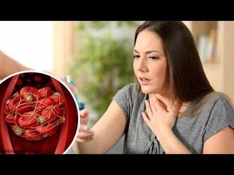 Dieta dla ileofemoralnom zakrzepicy