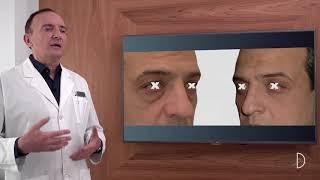 Píldora 02: Blefaroplastia
