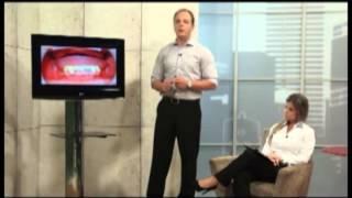 Prótese Total Fixa Inferior Sobre Implante Dentário - Tipo Protocolo De Carga Imediata