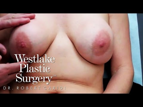 Educational Video: Capsular Contracture: Before And After