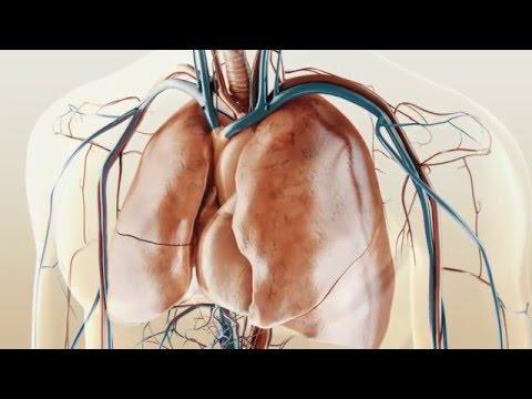 Hypertonischen Form biliäre Dyskinesien