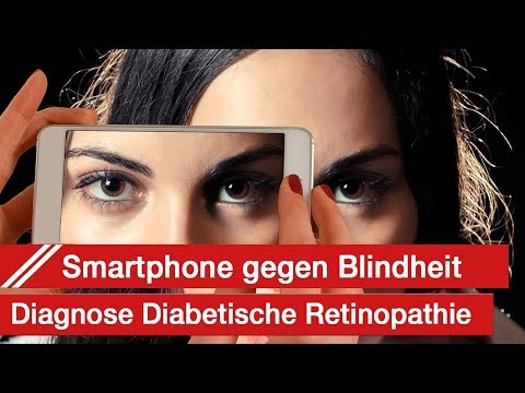 Sunflower Behandlung von Diabetes