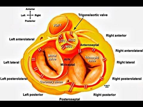 Wolff-Parkinson-White (WPW) Syndrome: PowerPoint ...