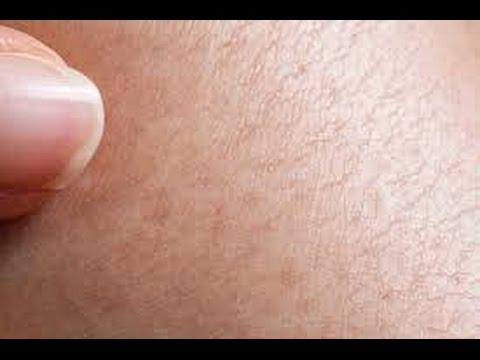 Cura di psoriasi su pelle di faccia