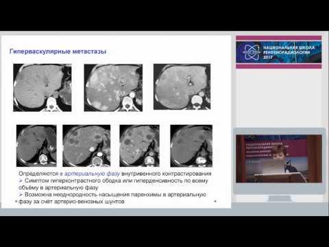 Цирроз печени рекомендации по диагностике и лечению
