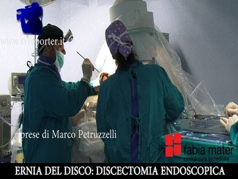 Displasia del ginocchio Video