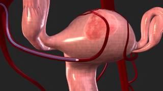 Uterine Fibroid Embolization (UFE) with Magellan Robotic System