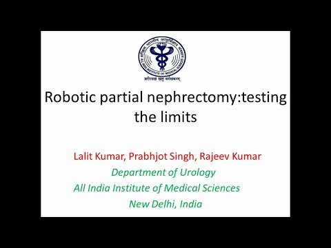 Robotic partial nephrectomy: testing the limits