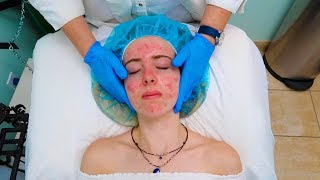 Chemical Peel for Acne!!