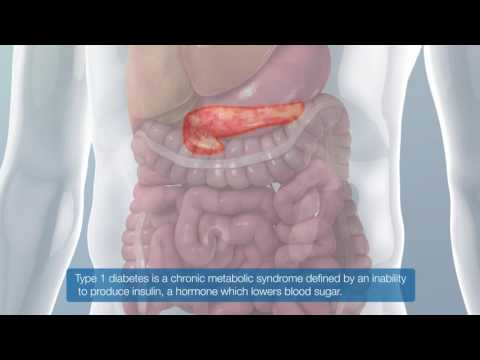 Mit insulinabhängiger Diabetes mellitus Insulin