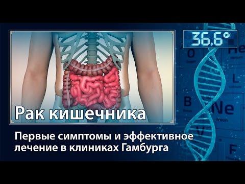 Рак кишечника. Первые симптомы и эффективное лечение в клиниках Гамбурга