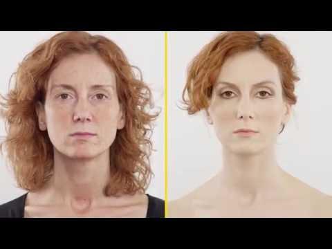 Che togliere la pigmentazione da una faccia
