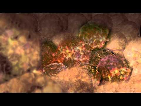 Papilom cum se îndepărtează medicamentul
