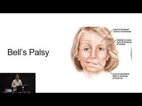 Porażenie Bella, neuralgia popółpaścowa,, neuropatia