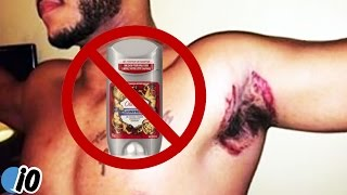 Old Spice Deodorant Is Leaving People With Bad Burns