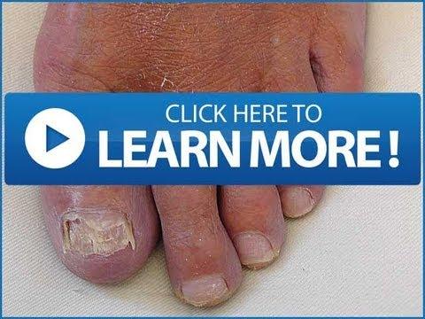 Ituturing dermatophyte nail