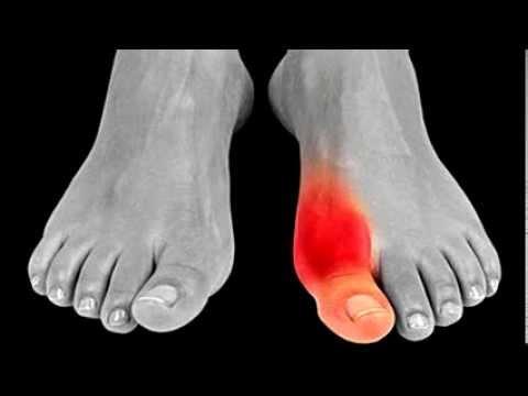 Comprimir de la col para el dolor articular