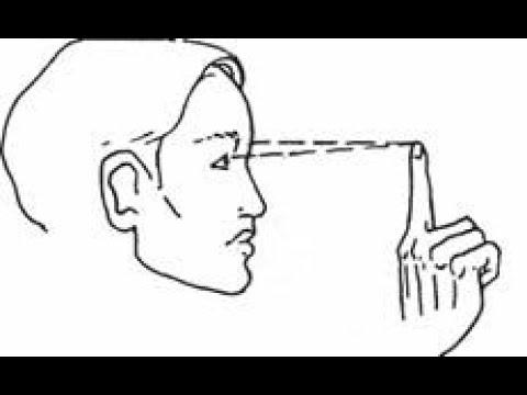 Сложный миопический астигматизм с косыми осями