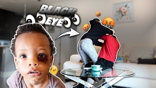 I Gave My Son A BLACK EYE To See How HIS MOM Would React!!! **THIS HAPPENED**