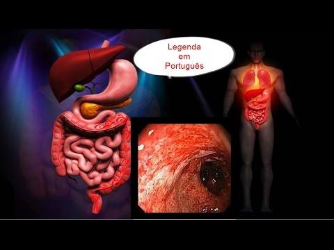 La pressione sanguigna e la vena renale