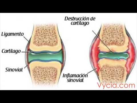Dureri de picioare la genunchi articulații