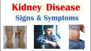 Kidney (Renal) Disease Signs & Symptoms (ex. Peripheral Edema, Fatigue, Itchiness)