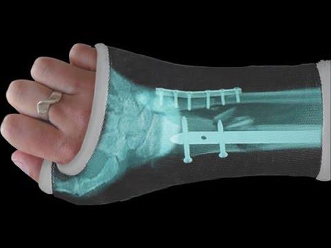 Страшный перелом руки.