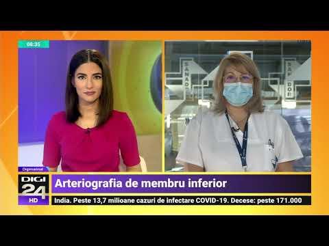 Opinii operațiuni de operare varicoză
