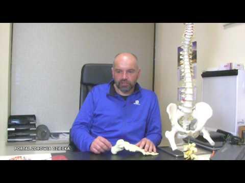 Koślawe zniekształcenie szyjki kości udowej u dzieci