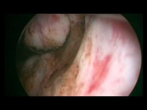 Sclerosi foto prostata