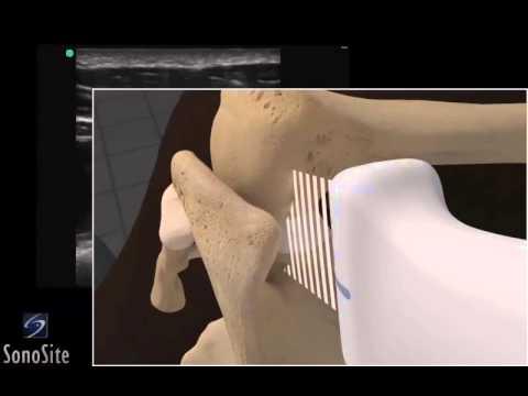 Centro per il trattamento della colonna vertebrale e delle articolazioni Medvedkovo