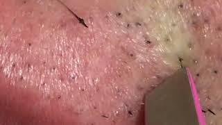 【Plucking Facial Hair】ずっと見ていられる盛夏のヒゲ抜き 2018.8.15(鼻下編)