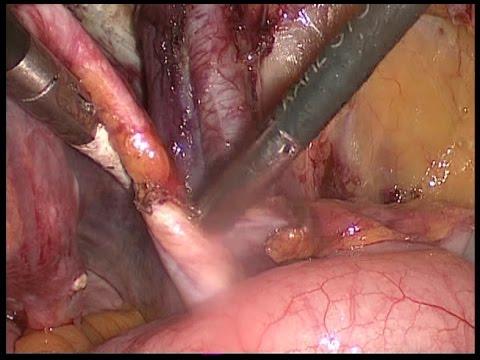 การผ่าตัดเส้นเลือดขอดใน Sverdlovsk ภูมิภาค