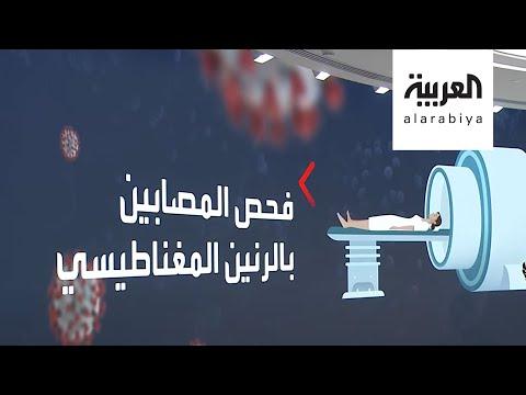 العرب اليوم - شاهد: دراسة تكشف حقائق جديدة حول تأثيرات خطيرة لـ