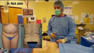 Dr. Jabor - Check Out Power Assisted Lipo & Tummy Tuck...