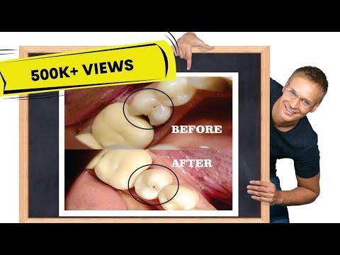 Class II cavity restoration | STEP-BY-STEP