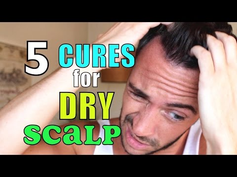 Video HOW I GOT RID OF DANDRUFF & DRY SCALP | 5 Natural Home Remedies | Cheap Tip #231