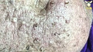 old age blackheads - Free video search site - Findclip Net