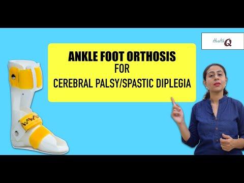 Tratamentul osteoartrozei genunchiului cu sinovită