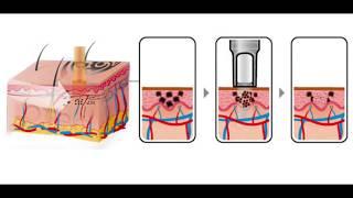 Hoe Werkt Tattoo Verwijderen? Tatoeage Laseren Met Picolaser