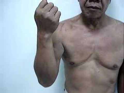 Operacja Naprawcza Po Pooperacyjnym Przerwaniu Ścięgna Mięśnia Dwugłowego