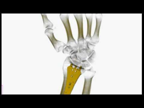 Złamanie dalszego końca kości promieniowej zaopatrzone płytką LC-DCP