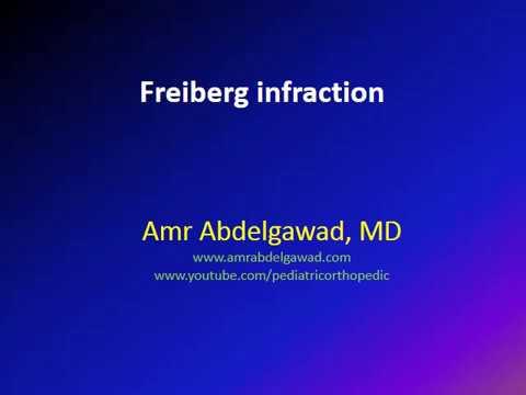 Fórum hatékony artritisz és ízületi gyulladás kezelésére