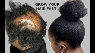 YOUR HAIR WILL GROW LIKE CRAZY GROW HAIR Long, Thick & Healthy FAST!